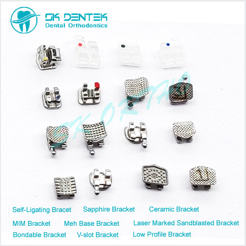 Orthodontic Brace Series
