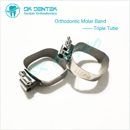 Orthodontic Triple Band